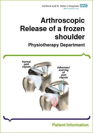 Arthroscopic Surgery: Reasons, Procedure, & Benefits